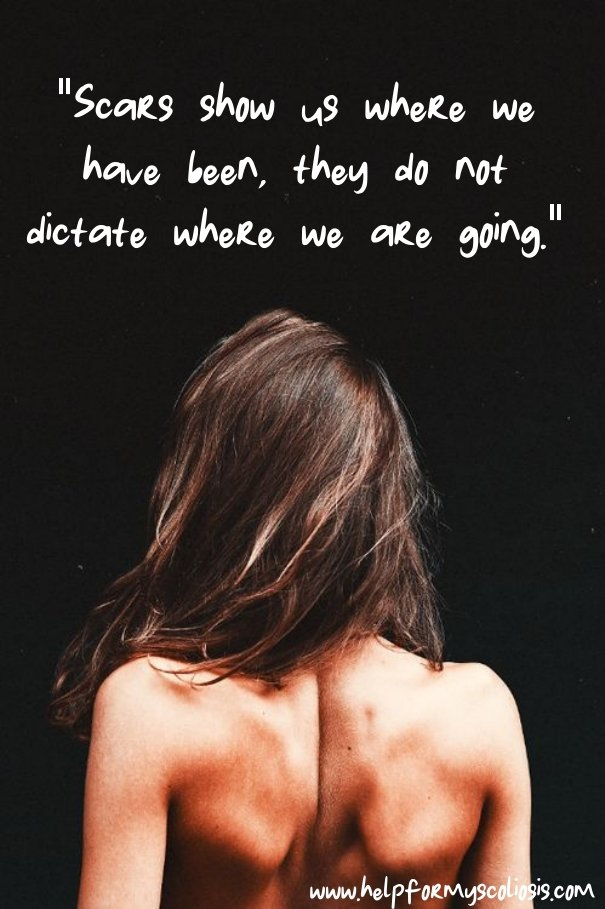 scoliosis-quote-scars