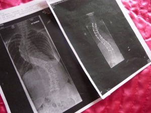 What is scoliosis? Scoliosis X-rays