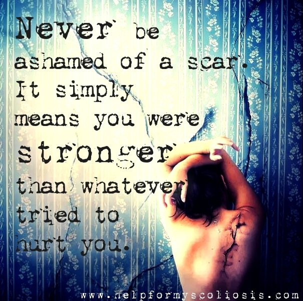 Love your scars - scoliosis scar quote