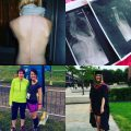Scoliosis-Awareness-Day-2017