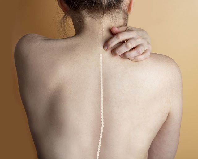 Signs of Scoliosis to look out for
