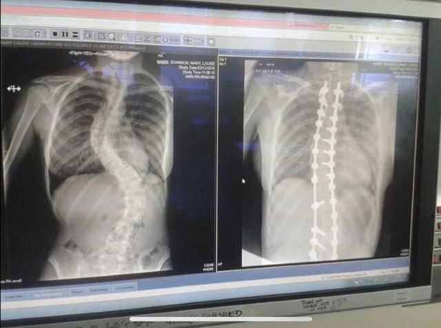 Scoliosis Xrays - before and after