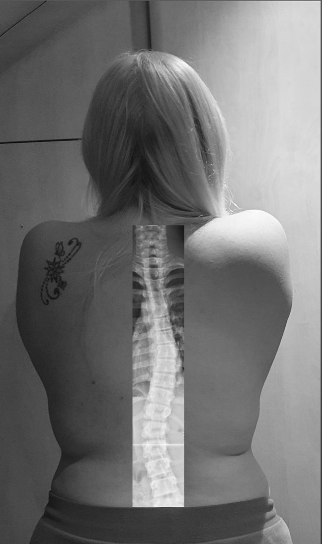 Scoliosis Awareness Month - Dannii's spine